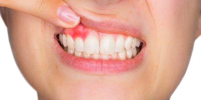 parodontologie à Carvin | Clinique dentaire Dr Simon et Associés