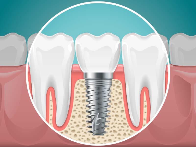 esthétique dentaire à Carvin | Clinique dentaire Dr Simon et Associés