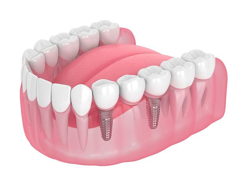 prothèses dentaires à Carvin | Clinique dentaire Dr Simon et Associés