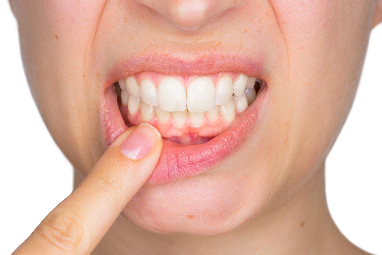 soin gencives à Carvin   Clinique dentaire Dr Simon et Associés